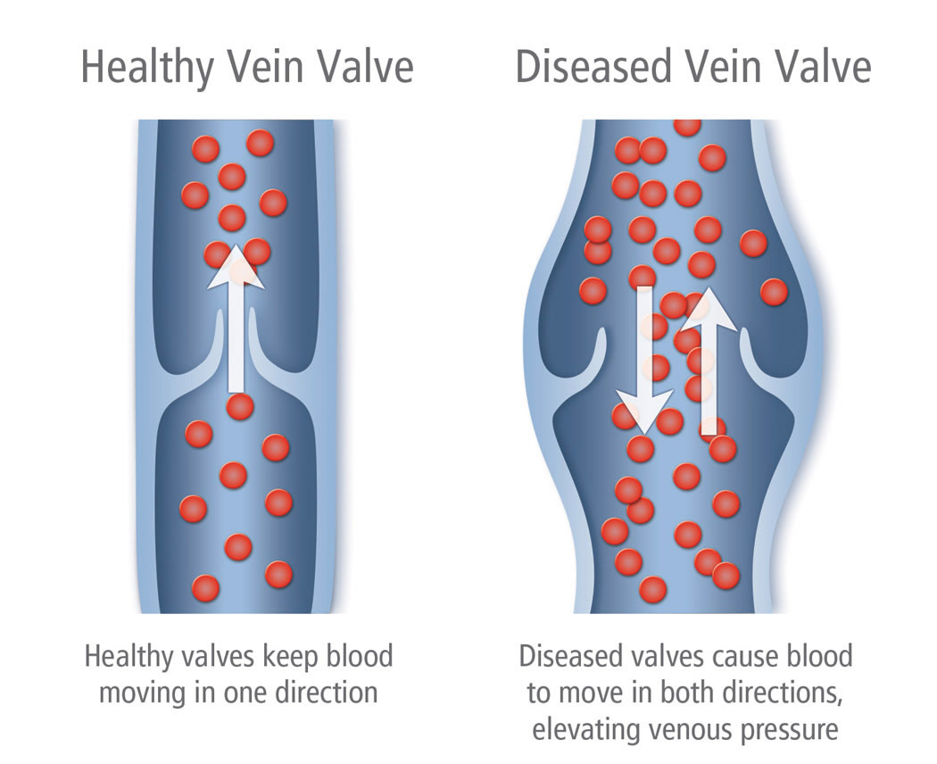 Healthy-vs.-Diseased-Vein-Valve-Illustration-varicose vein